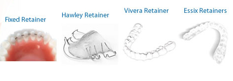 Dental Retainers | Faces and Smiles